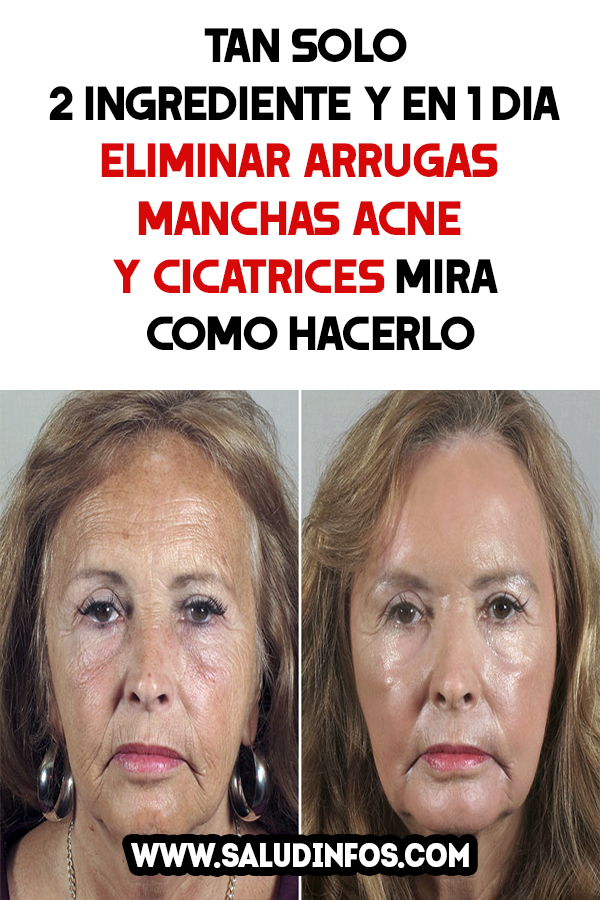 diferentes tipos de cicatrices de acne