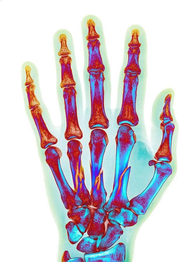 642fcf80e570c9b8ff8ebc5dba68bd09 » X-ray Drawing