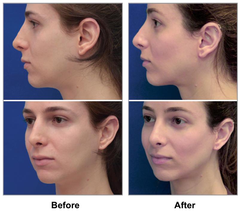 feminzation illinois Facial