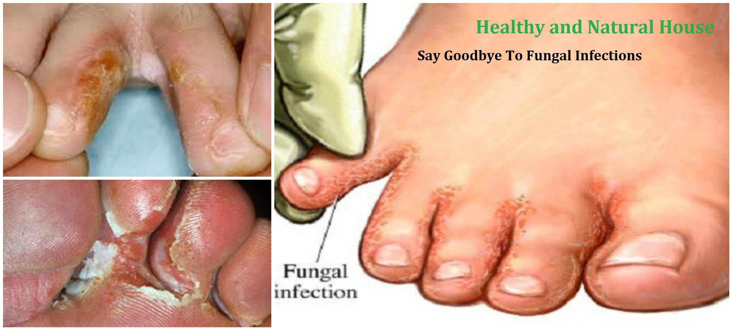 Get rid of fungal infection very easy- just soak your feet in this ...