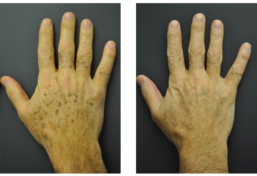 Brown spots, age spots and tattoo removal San Diego