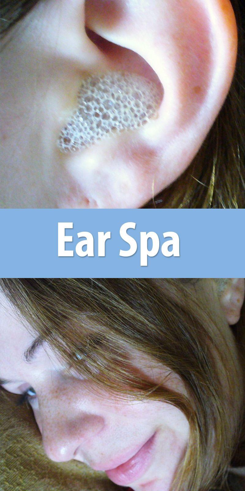 Ear spa ear wax hydrogen peroxide and remedies ear spa hydrogen peroxide earspa dayear wax removalitchy eyeshousehold tips diy solutioingenieria Images