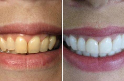 Como Branquear Os Dentes Com Bicarbonato De Sodio Clareamento