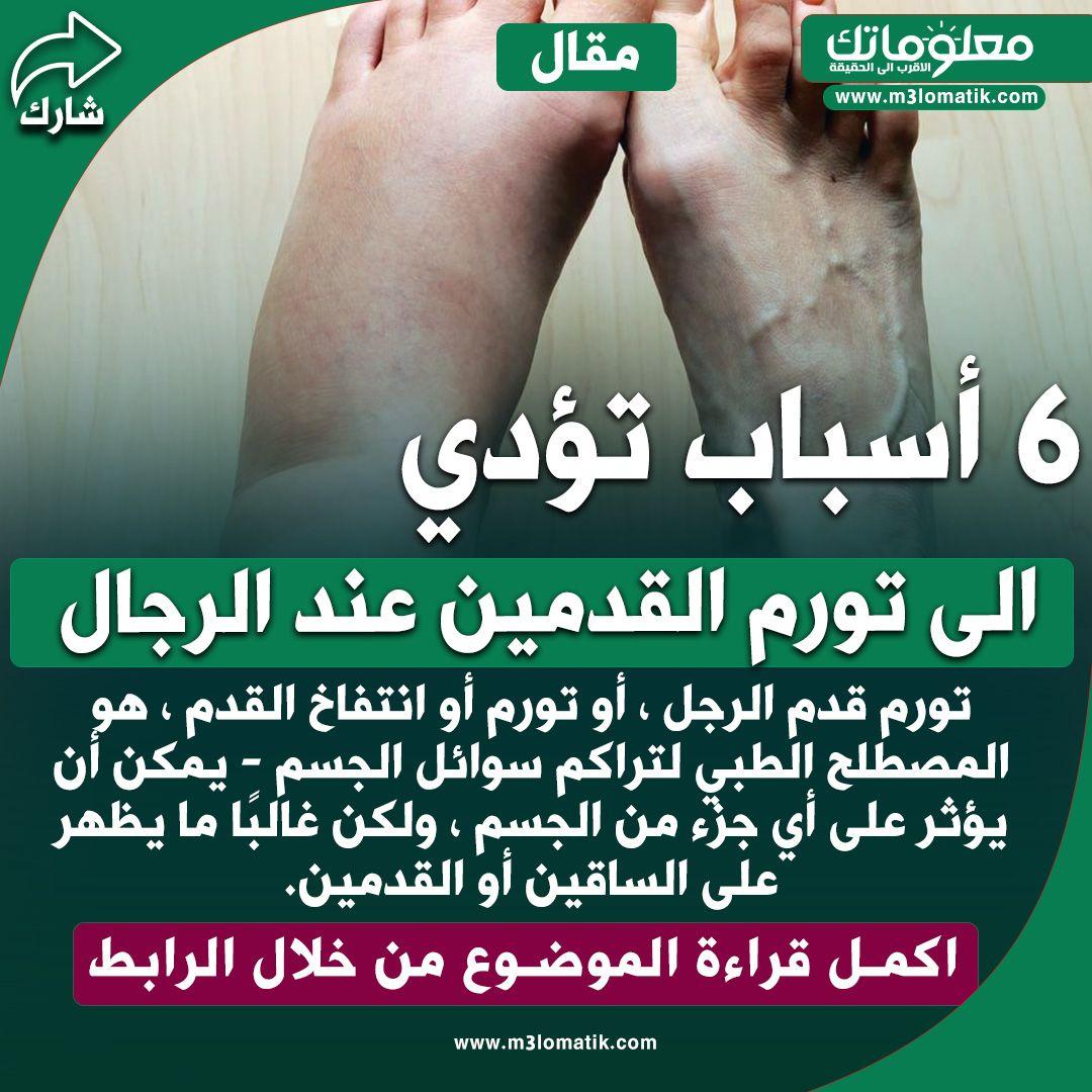أسباب تؤدي الى تورم القدمين عند الرجال