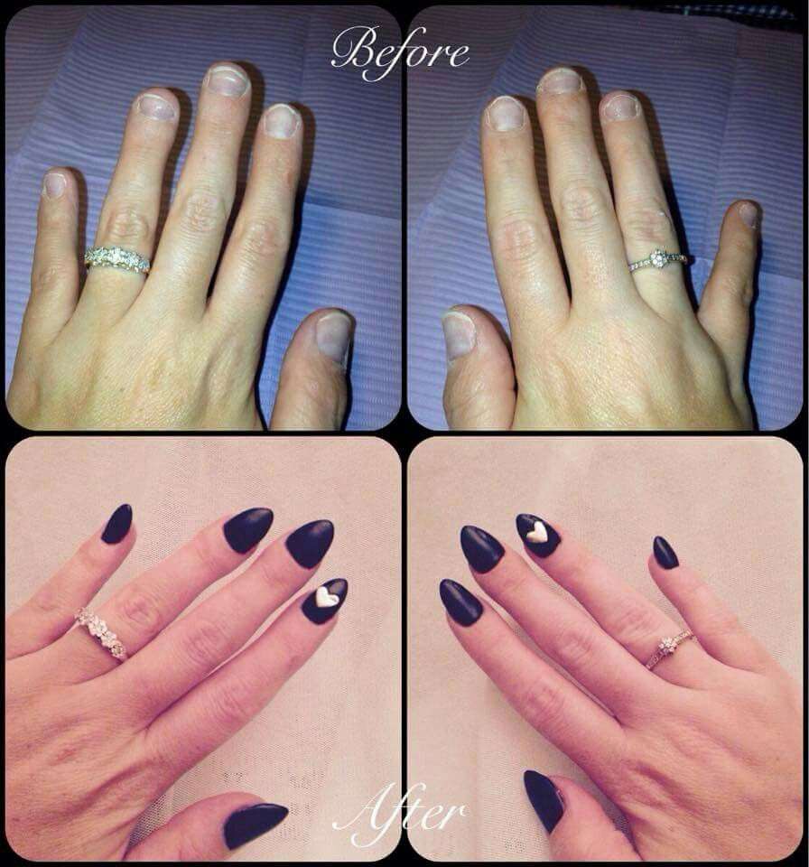 My real nails (wide bitten short nails) .vs. when i make my own ...