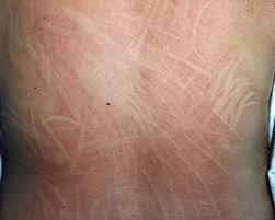 What my skin looks like daily   back, arms, legs