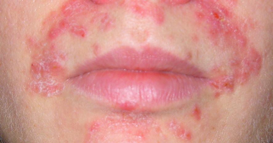 dermatitis herpetiformis face - This is what I had...on my ...