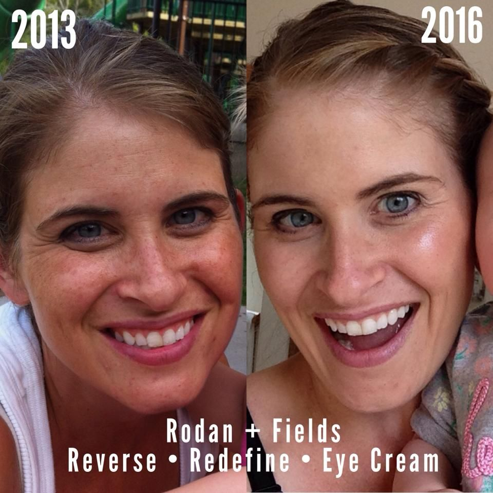 Rodan  Fields is for the appearance of brown spots dullness and