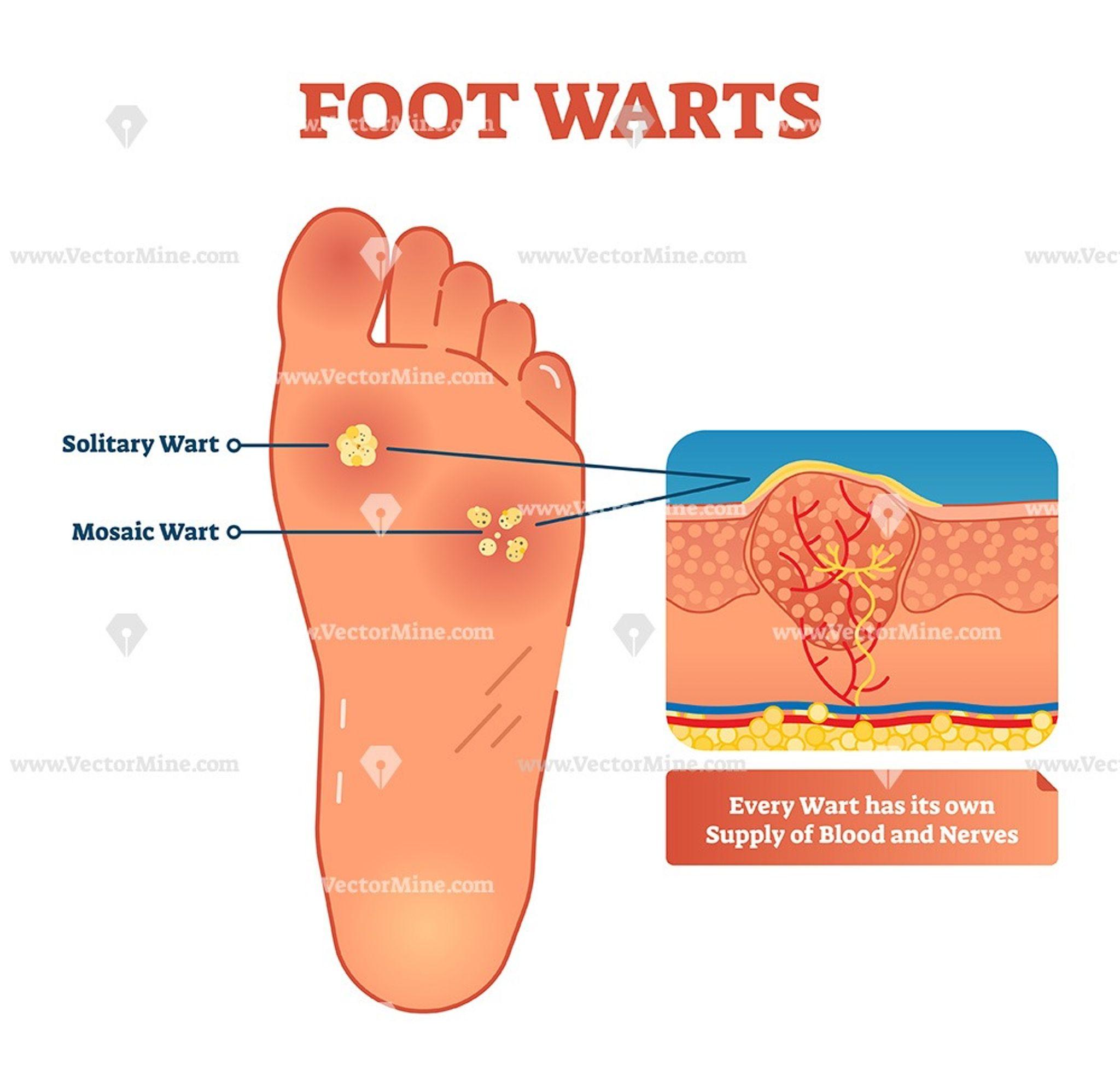 Foot wart diagram - Hpv life cycle diagram