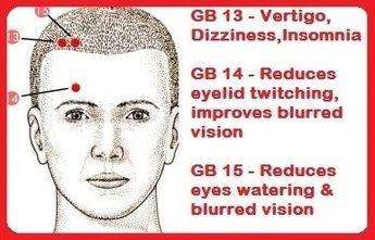 gall bladder 13-15 helps eye & head issu ACUPRESSURE Gb13 Gb14 Gb15