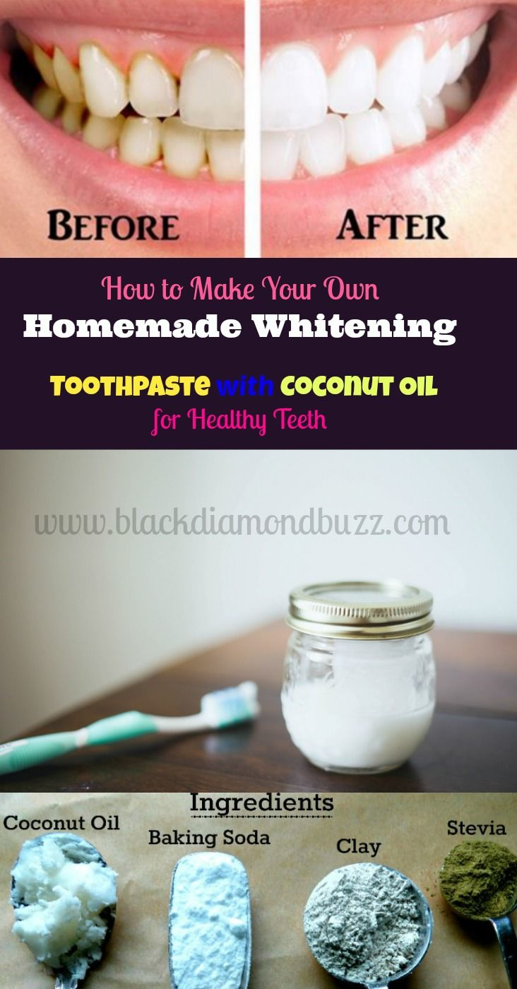 How to Make Your Own Homemade Natural Whitening Tooth Paste with Coconut Oil for Healthy Teeth - Ingredients = baking soda , coconut oil , activated ...