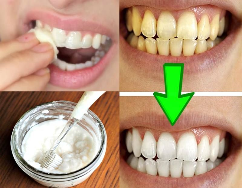 Guaranteed white your yellow teeth in less than a pair