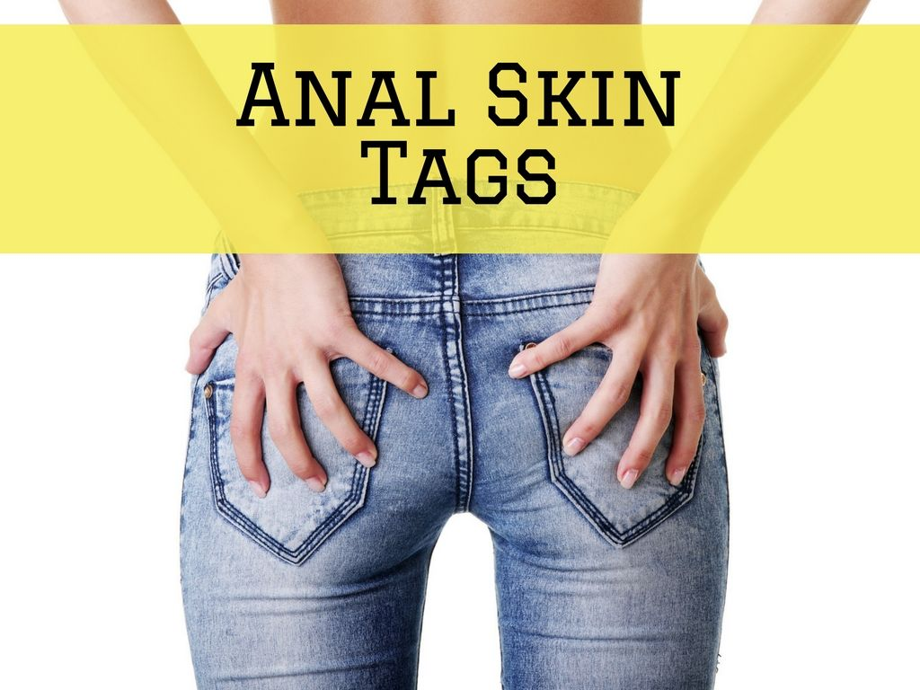 Join. self removal of anal skin tag remarkable
