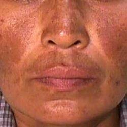 Belleconsejo de hoy por Salón Nuria Espinosa Clasificamos el melasma en 3 clases Melasma Dermico cuando se encuentra a nivel de la dermis y en la zona cigomático o labio superior, Este tipo de Melasma es más dificil de eliminar. Melasma Epidermico cuando se encuentra a nivel de la epidermis , es más superficial y se puede combatir más facilemente, y se localiza en la zona central del rostro Melasma Mixto combina características de ambos dos. V