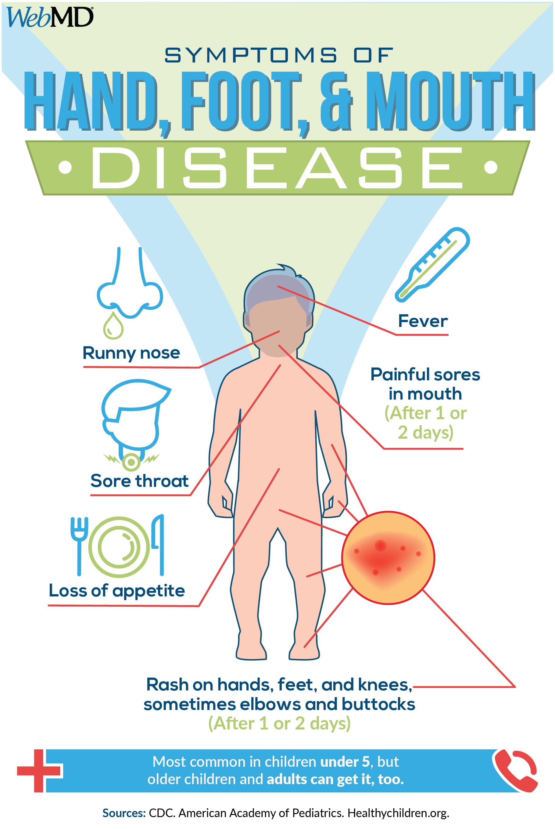 Hand-Foot-and-Mouth Disease | Hand, mouth disease, Rash on hands ...
