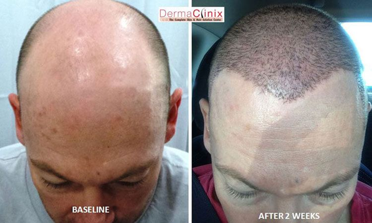 Hair Transplant Delhi Natural Hair Transplant Offering You The High