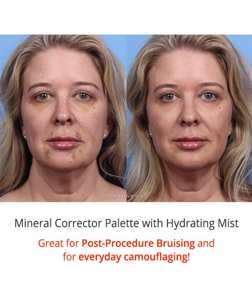 Colorescience Mineral Corrector Palette with SPF 20