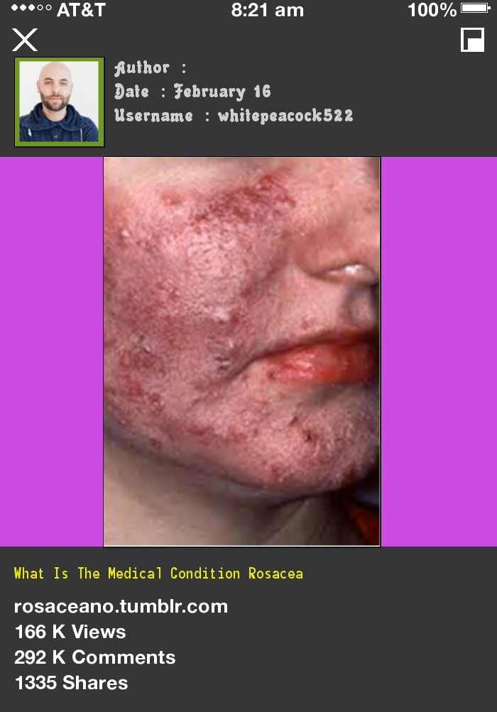 What Is The Medical Condition Rosacea 235225 Rosacea