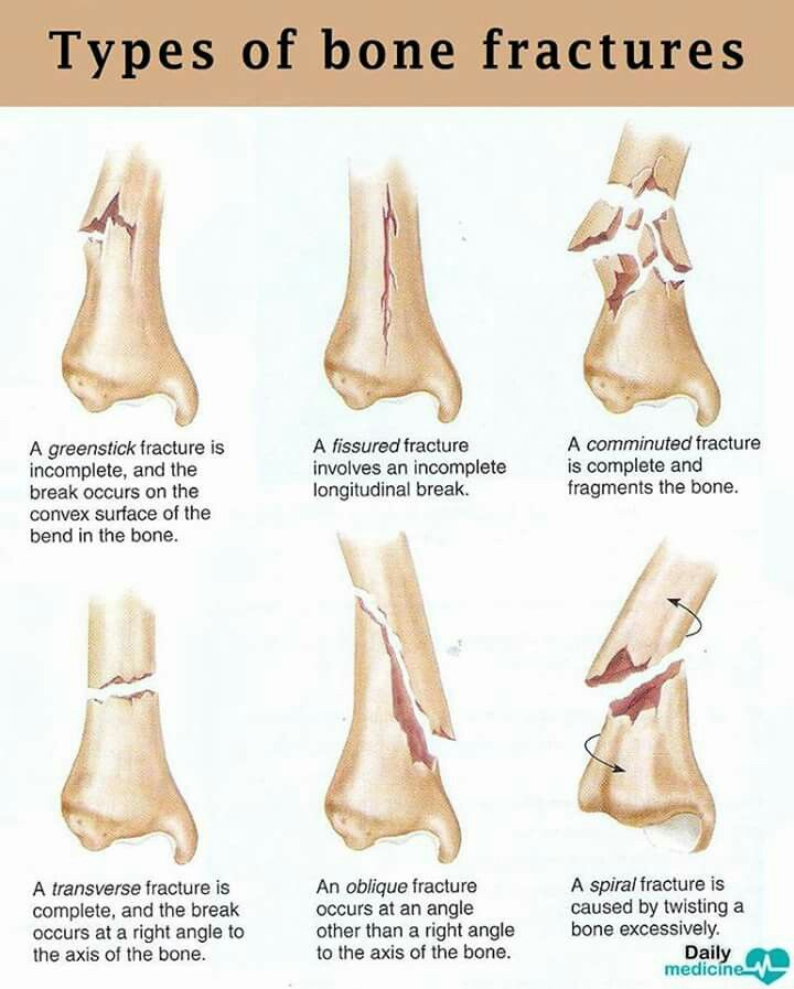 Types of bone fractures | Medical | Pinterest | Bone fracture and Nclex