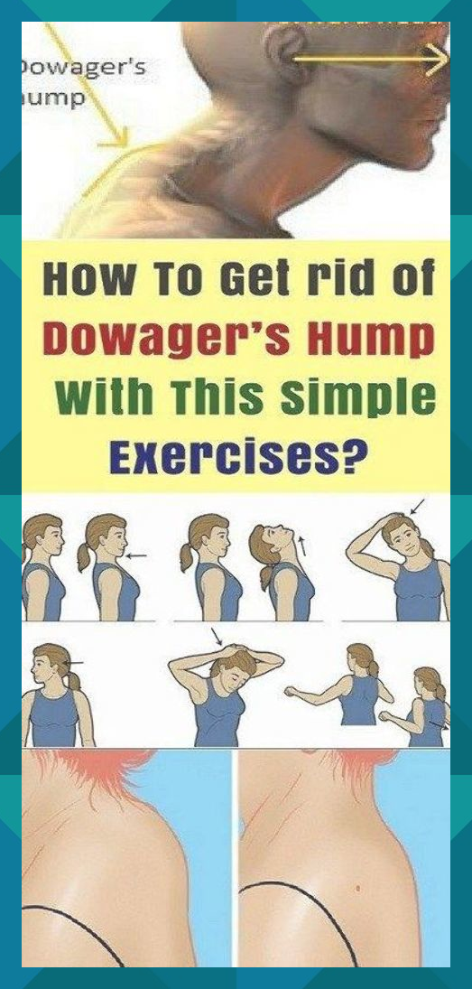 How To Get Rid Of Dowager S Hump Exercises