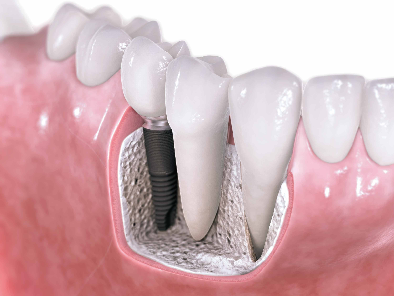 What are the benefits of dental bridges? | Dental implants, Dental ...