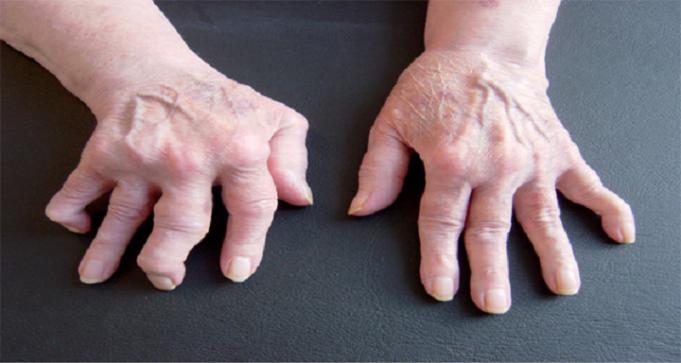 Combattere i sintomi dell'artrite con cannella e miele