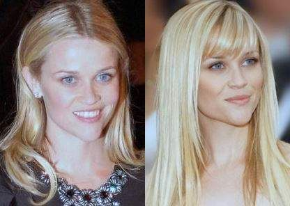 49 Celebrities Before and After Plastic Surgery - YouTube