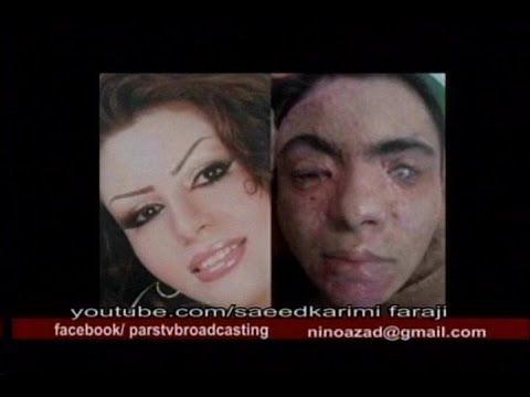 Faraji_Dr.Danesh_102114 در حکومت آخوندی، اسید پاشی به زنان دوباره آغاز شده