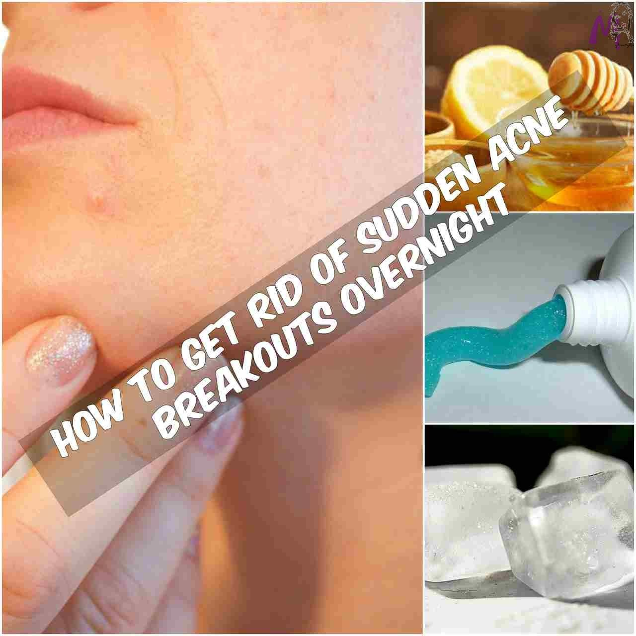 quick acne routine You can never expect the zit to just disappear overnight. There is no magical formula made for it yet. But the good news is there are some easy remedies that can help reduce the swelling and redness in a day's time. The punctured blemish can then be easily concealed and your day is saved. https://www.mybreezylife.com/how-to-get-rid-of-sudden-acne-breakouts-overnight/