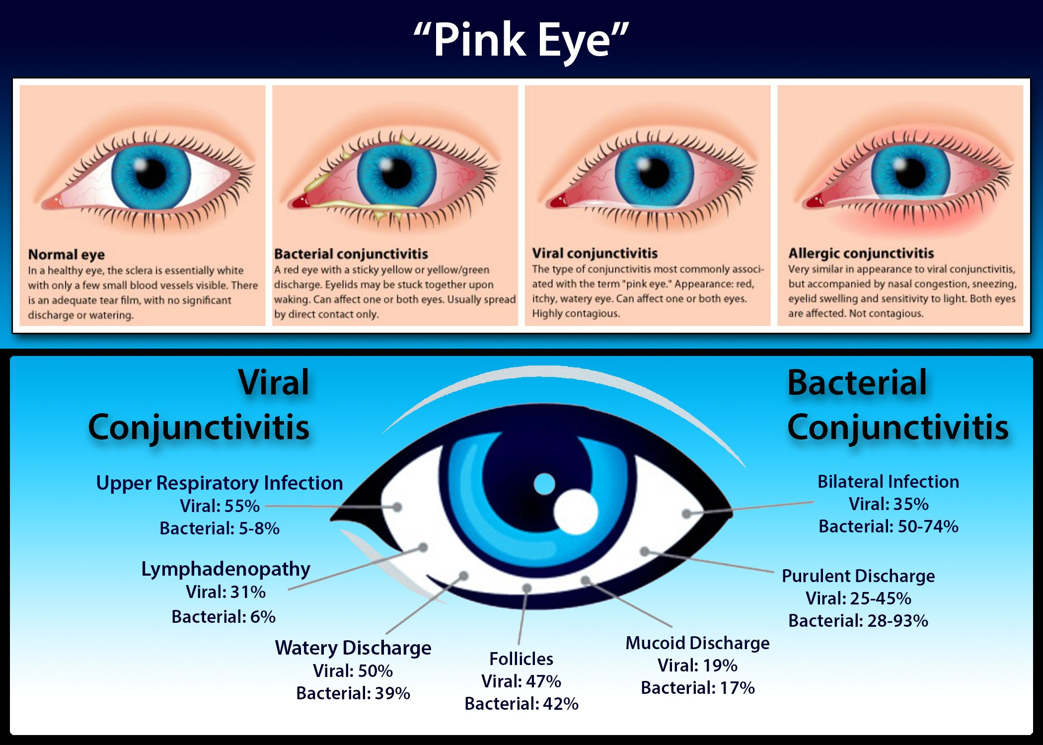 Conjunctivitis Or Pink Eye Is An Inflammation Of The Conjunctiva