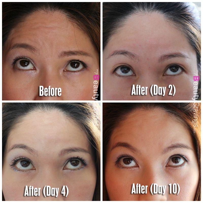 Botox Review At Cutis Medical Laser Clinics Nails Hair