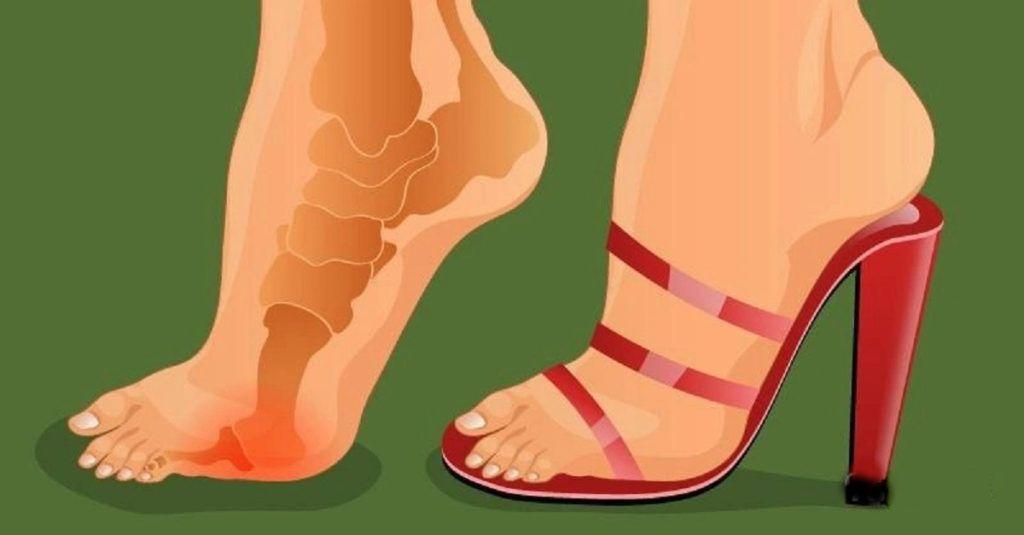 a magas sarkú cipők segíthetnek a fogyásban a paroxetin okoz-e fogyást