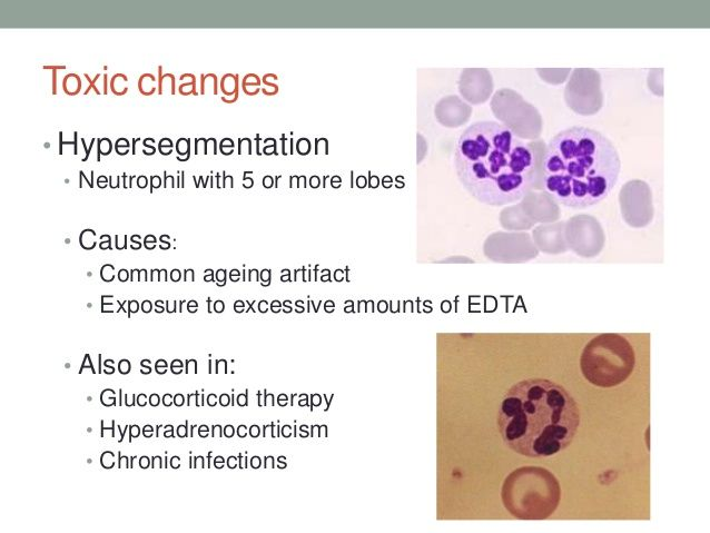 Toxic changes • Hypersegmentation • Neutrophil with 5 or more lobes • Causes: •…