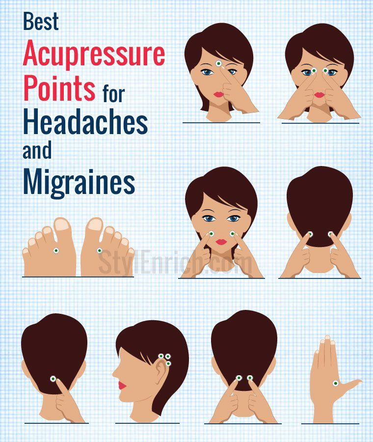 acupressure points for headache migraines