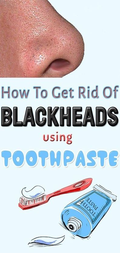 how to get rid of zits fast toothpaste