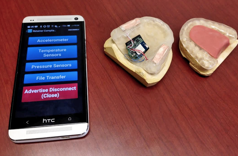 'Smart' mouth guard knows if you grind your teeth Mouth