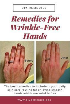 hand care home remedies