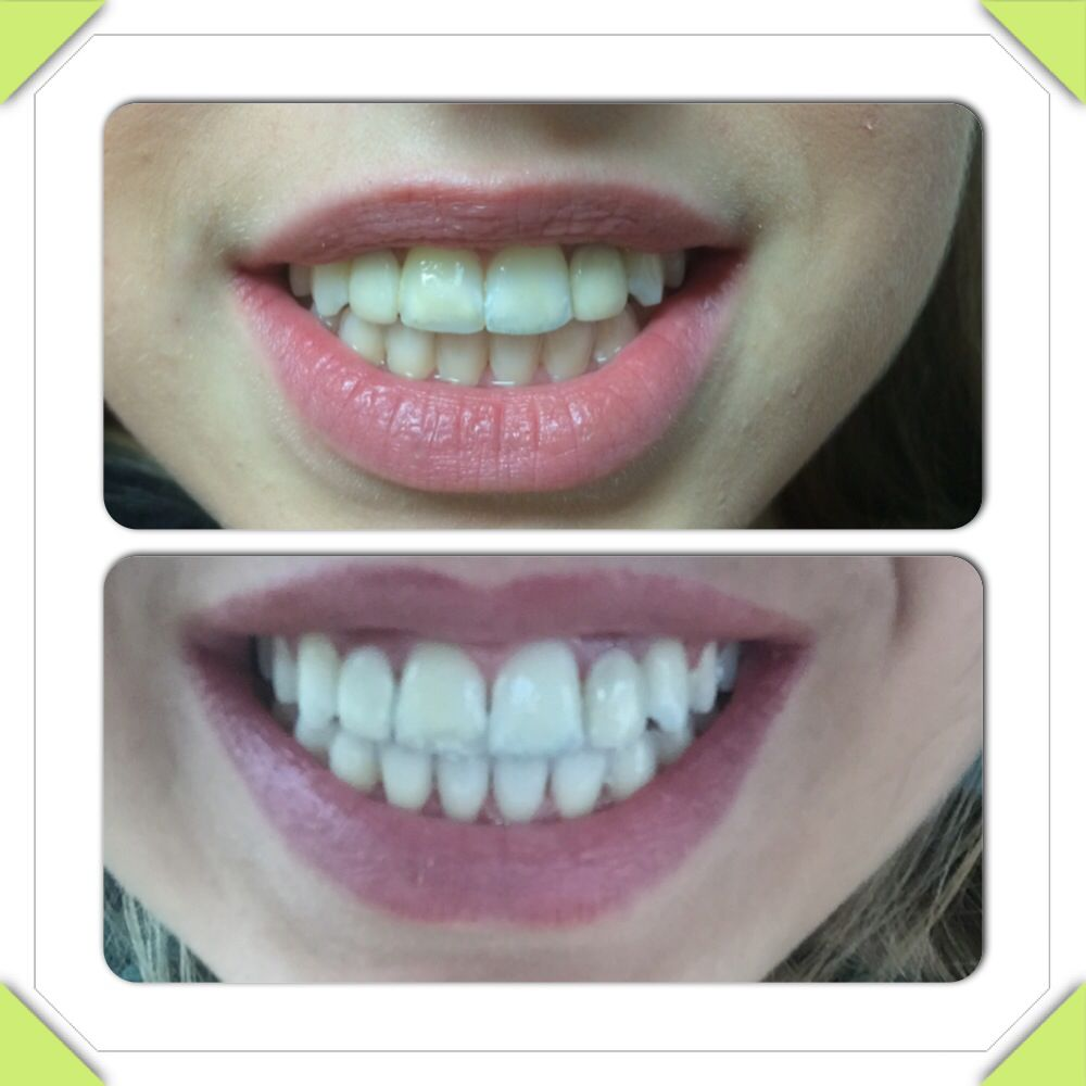 Pin On Sunless Tanning And Teeth Whitening
