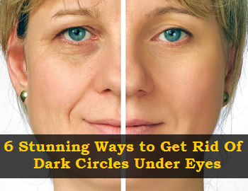 What Causes Dark Rings Under Your Eyes