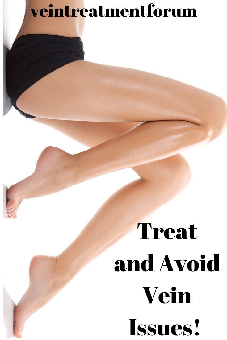 How to treat and avoid vein issues to get healthy legs