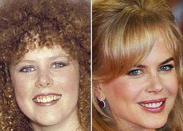 Girly Things : Celebrity pictures before and after fame
