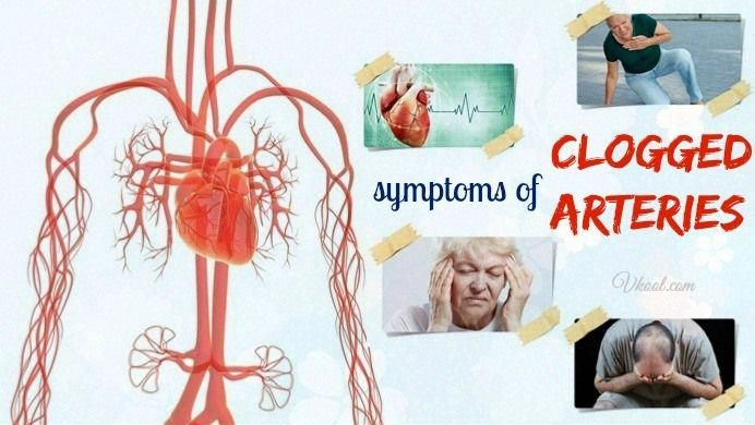 10 Signs And Symptoms Of Clogged Arteries In Heart #NaturalRemediesGout