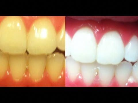 How To Whiten Teeth Fast And Instantly At Home How To Bleach Teeth