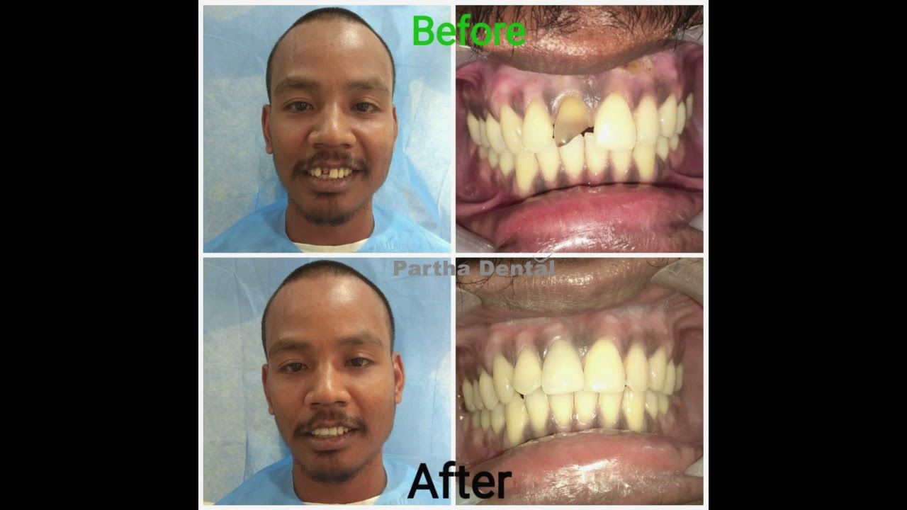 Options for Chipped Front Tooth Restoration at Partha