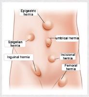 Incisional Hernia Repair: The procedure, risks