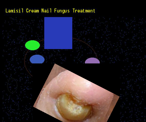 Lamisil Cream Nail Fungus Treatment Remedy You Have Nothing To Lose