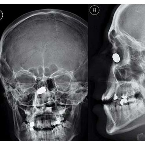 Bullet in nose  XRay Related  Radiologic technology