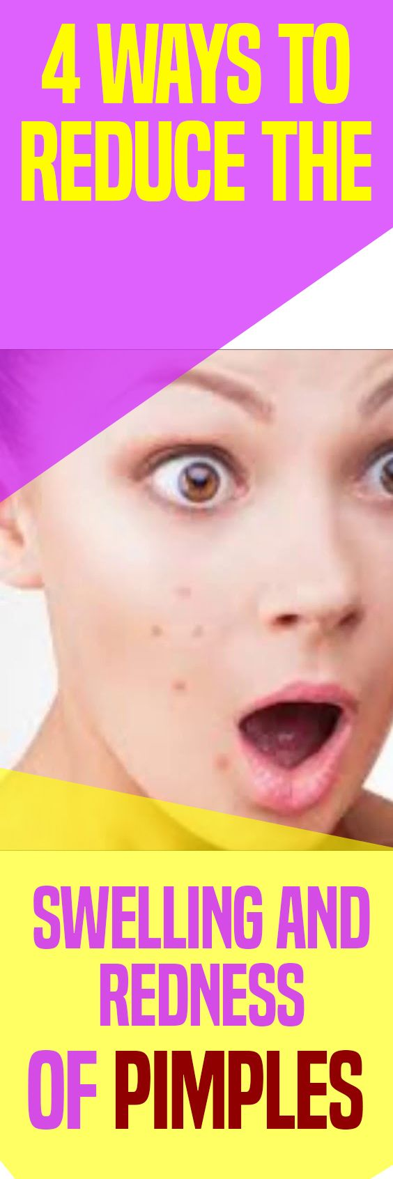 4 Ways to Reduce the Swelling and Redness of Pimples