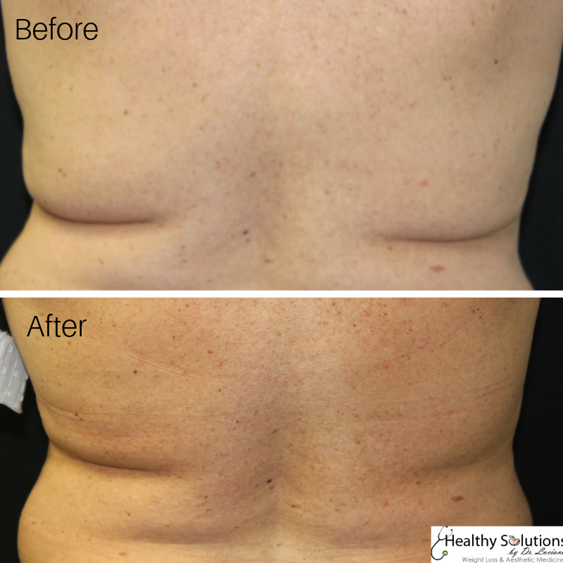 Pin on Coolsculpting