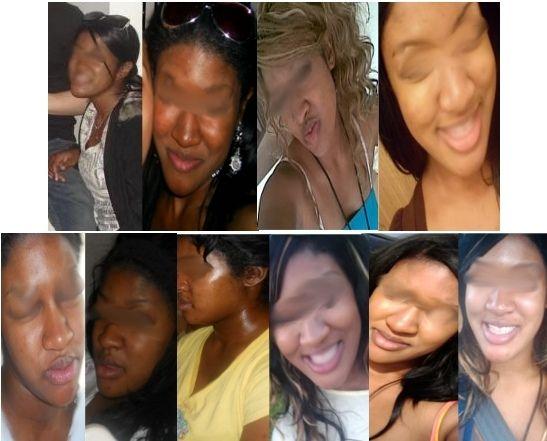 My Skin Lightening Journey Before After Beyonce Skin Lighten Skin Skin Bleaching